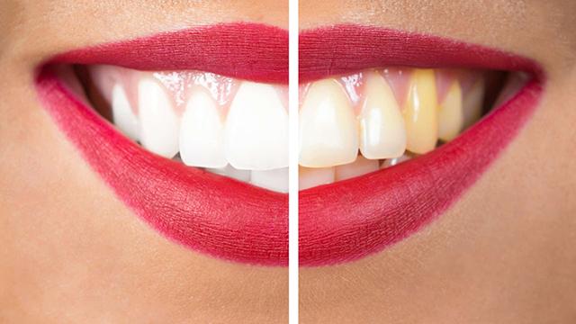 Resultaat van tanden witten
